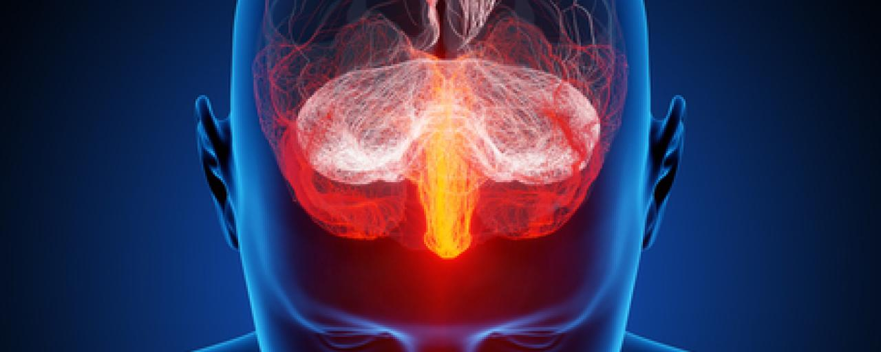 Çaresi Olmayan Baş Ağrısına Son: Migren İçin İlaç Geliştirildi!